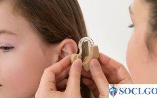 Инвалидность по слуху — критерии в 2018 году