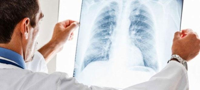 Льготы и пенсия больным туберкулезом в 2020 году
