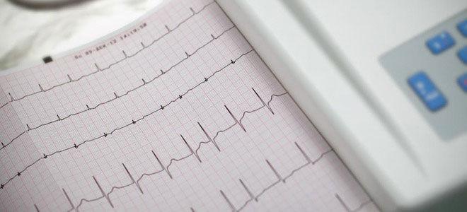 Дают ли инвалидность при аритмии сердца в 2019