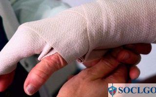 Страховые выплаты военнослужащим при травме: индексация в 2021 году
