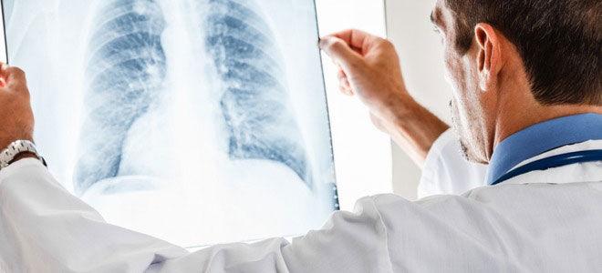 Дают ли инвалидность при туберкулезе в 2019