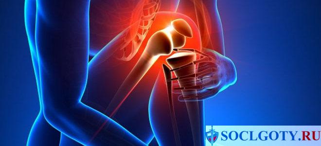 Операция по замене коленного сустава по квоте